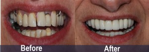 Cosmetic-bridge-supported-by-dental-implants