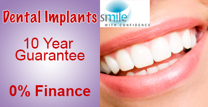 dentalimplants Dental Implants