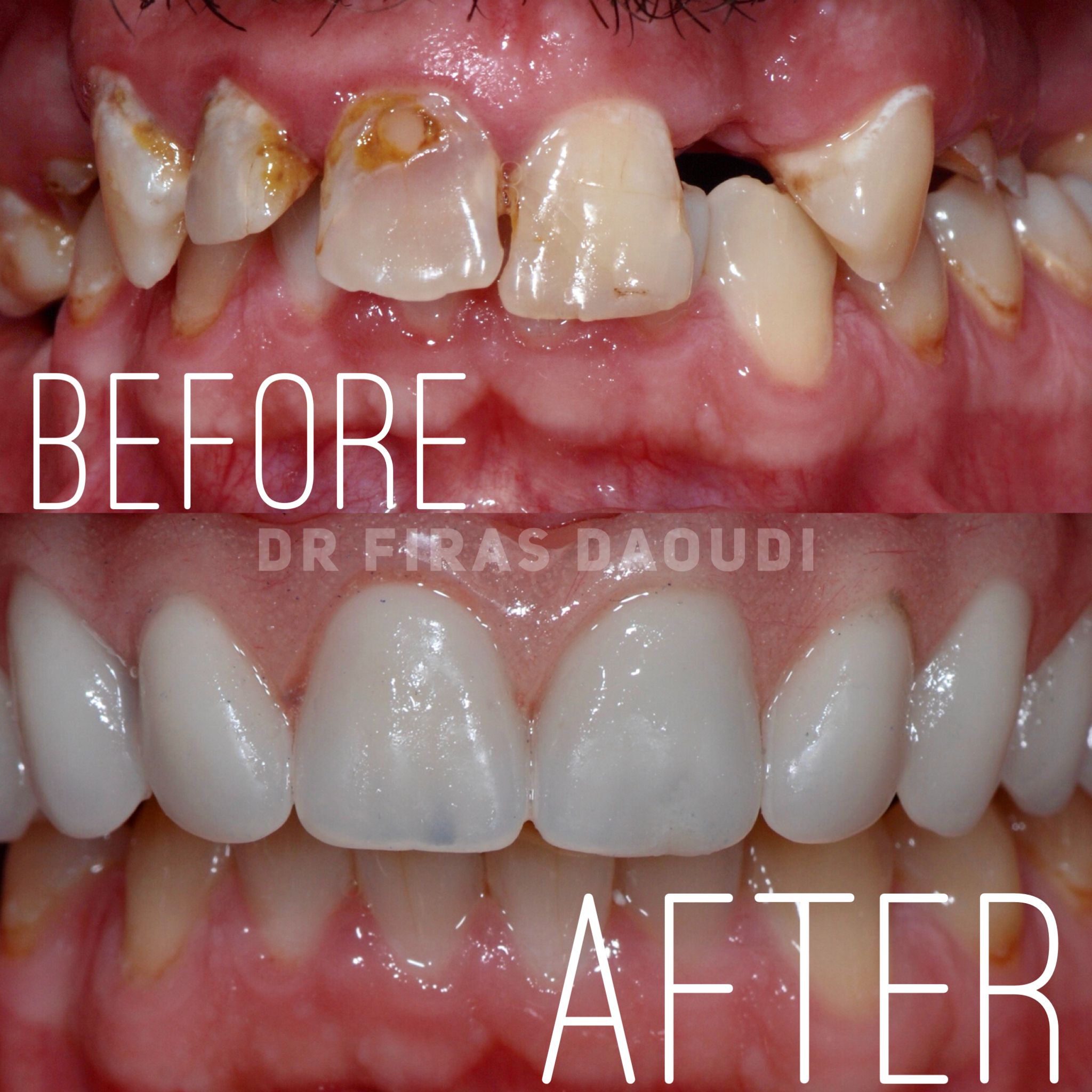 How To Reduce Dental Implants Cost?