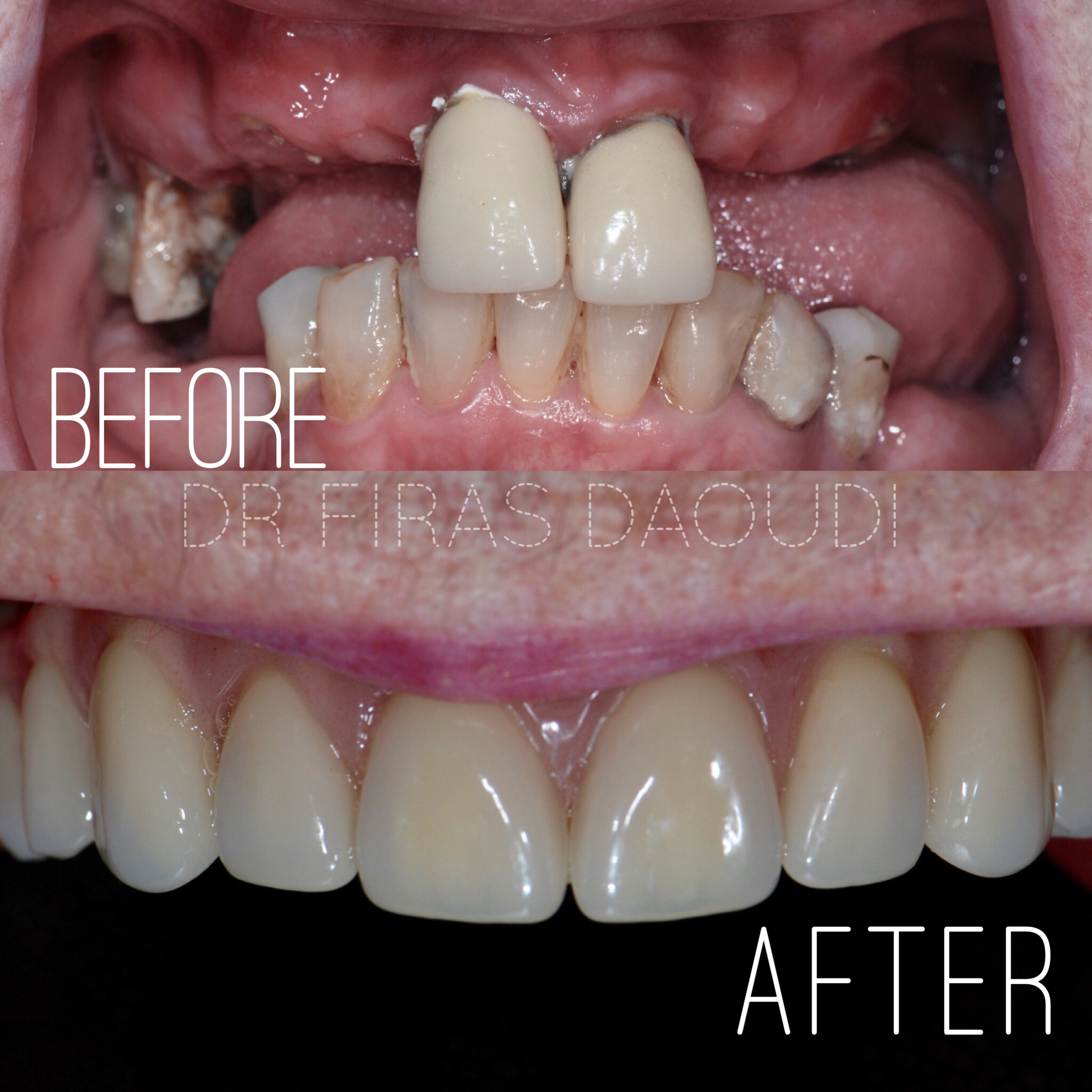 How Dental implants Can Improve Your Smile And Function