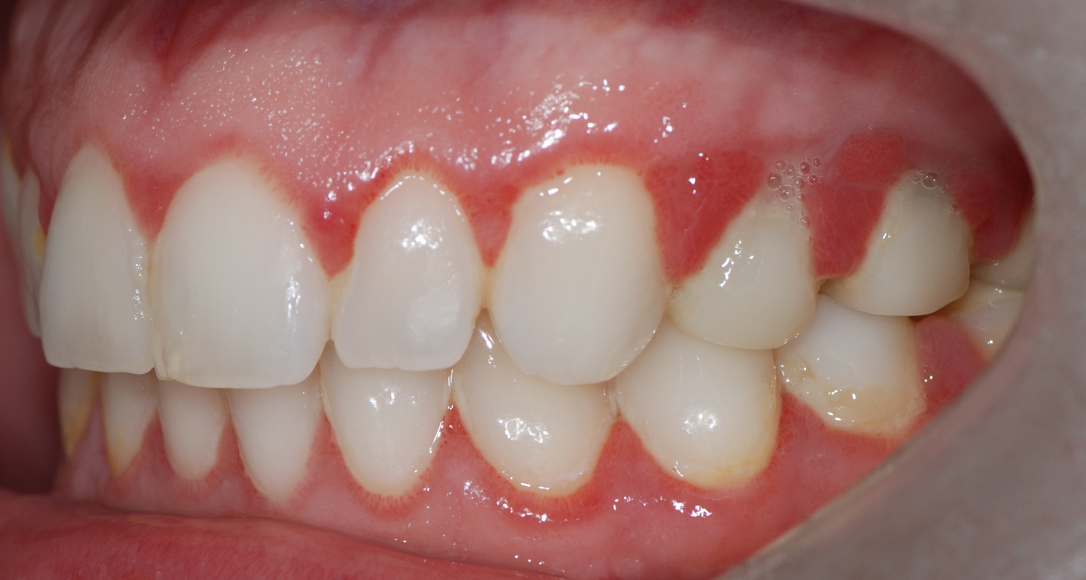 What is gum disease? What cause Gum Disease? How to treat Gum disease?