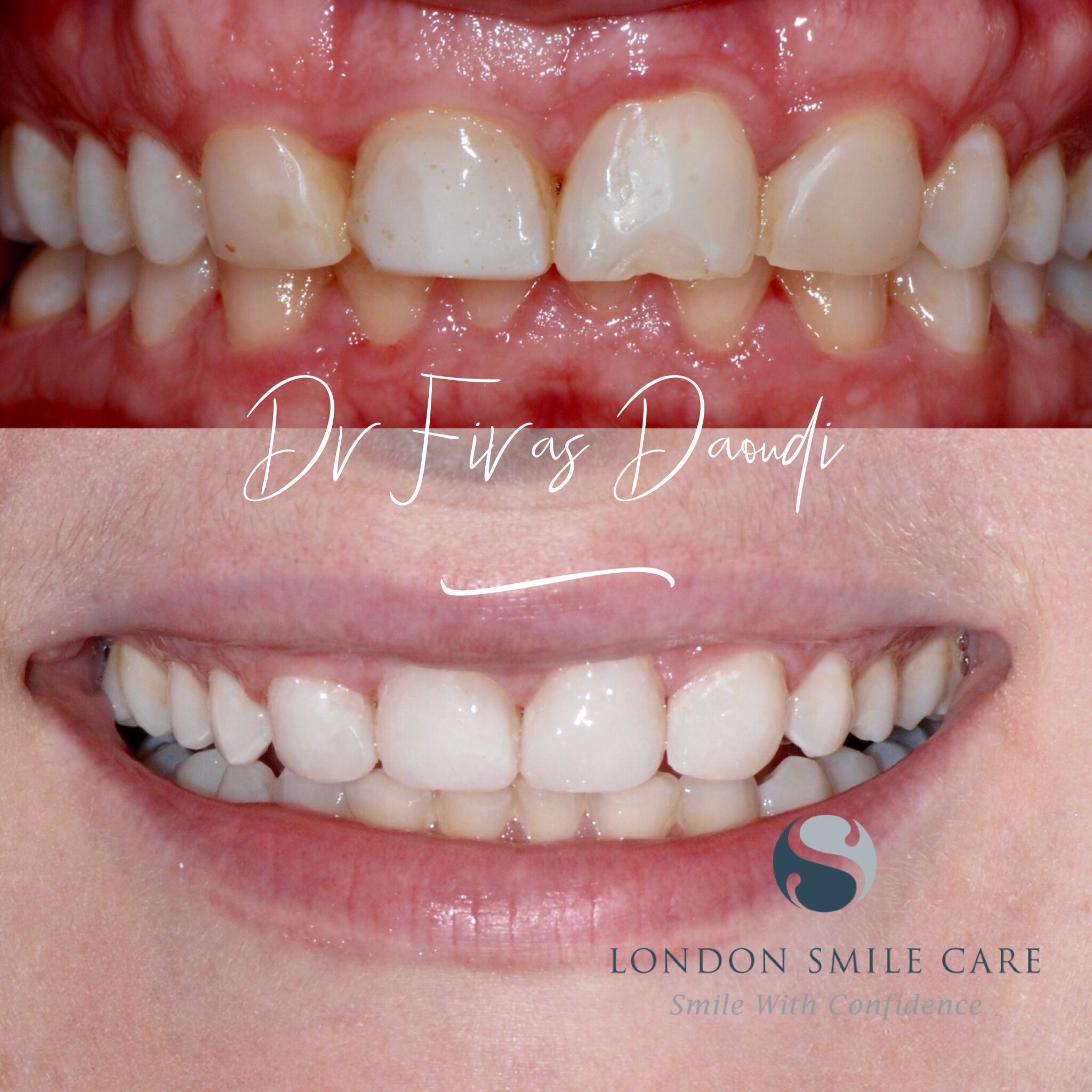 Cosmetic Dental Treatments To Improve Your Smile
