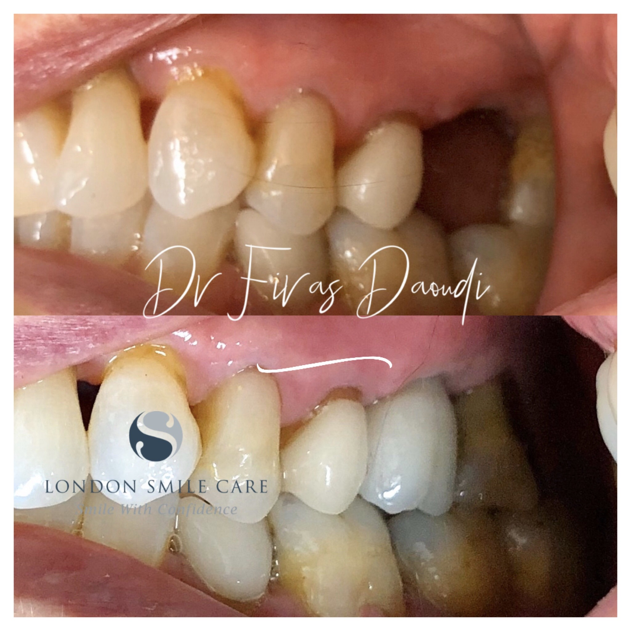 Am I A Good Candidate For Dental Implants?